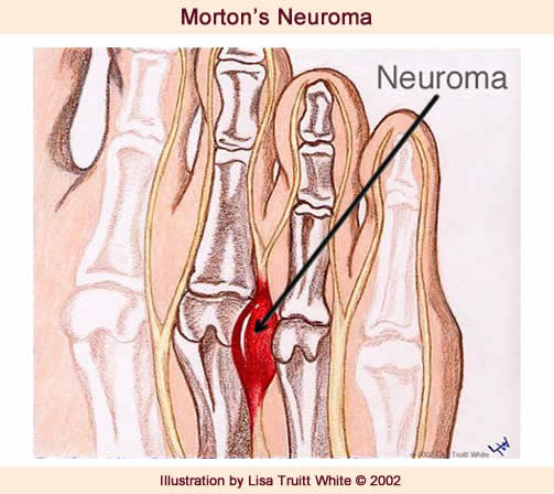 Morton's Neuroma Indianapolis Foot Doctor