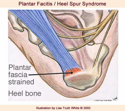 posterior heel pain and plantar fasciitis