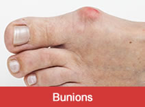 Bunion Treatment Indy Podiatry