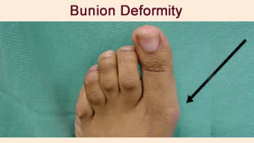 bunion deformity Indianapolis foot doctor