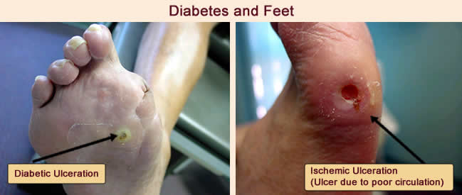diabetes and feet indianapolis foot doctor