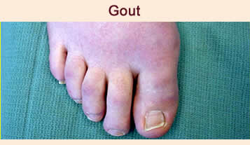 gout footcare indianapolis foot doctor