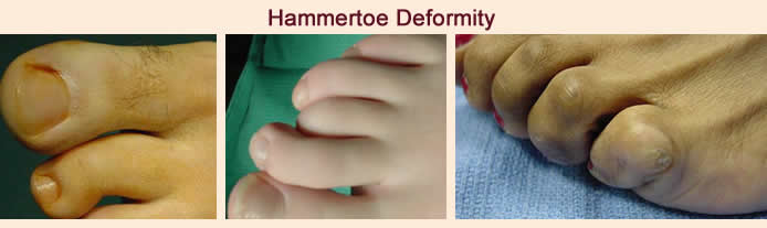 hammertoe care indianapolis foot doctor