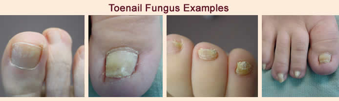 Nail Fungus - Indy Podiatry - Michael J. Helms, DPM - Podiatrist ...