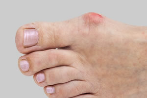 Bunions when to treat