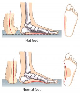 Flat vs. Normal Feet